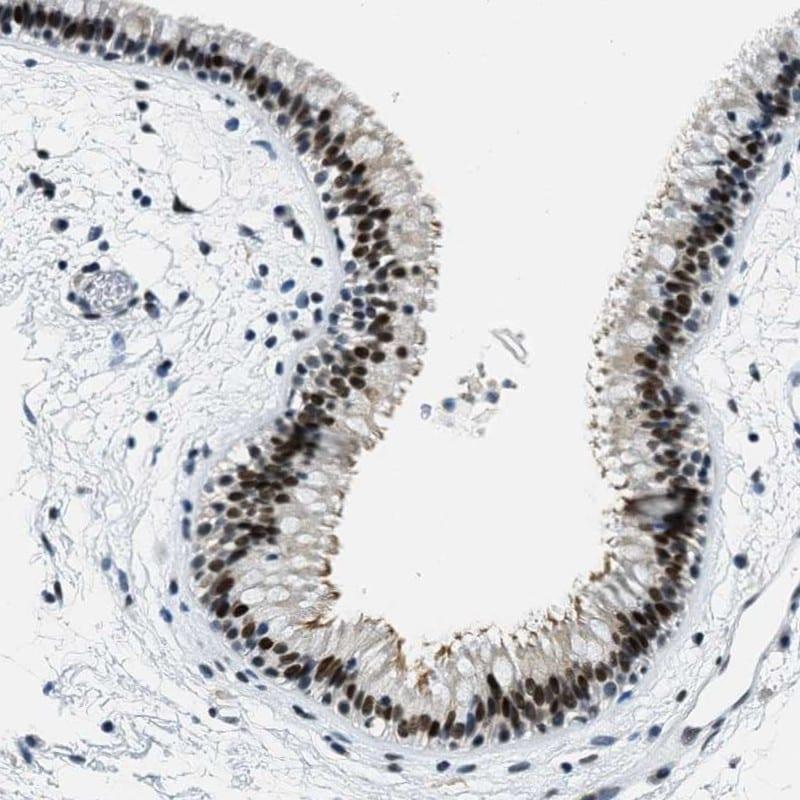 SSB Antibody in Immunohistochemistry (IHC)