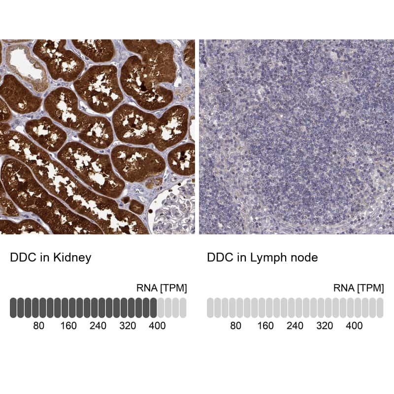 DOPA Decarboxylase Antibody in Relative expression