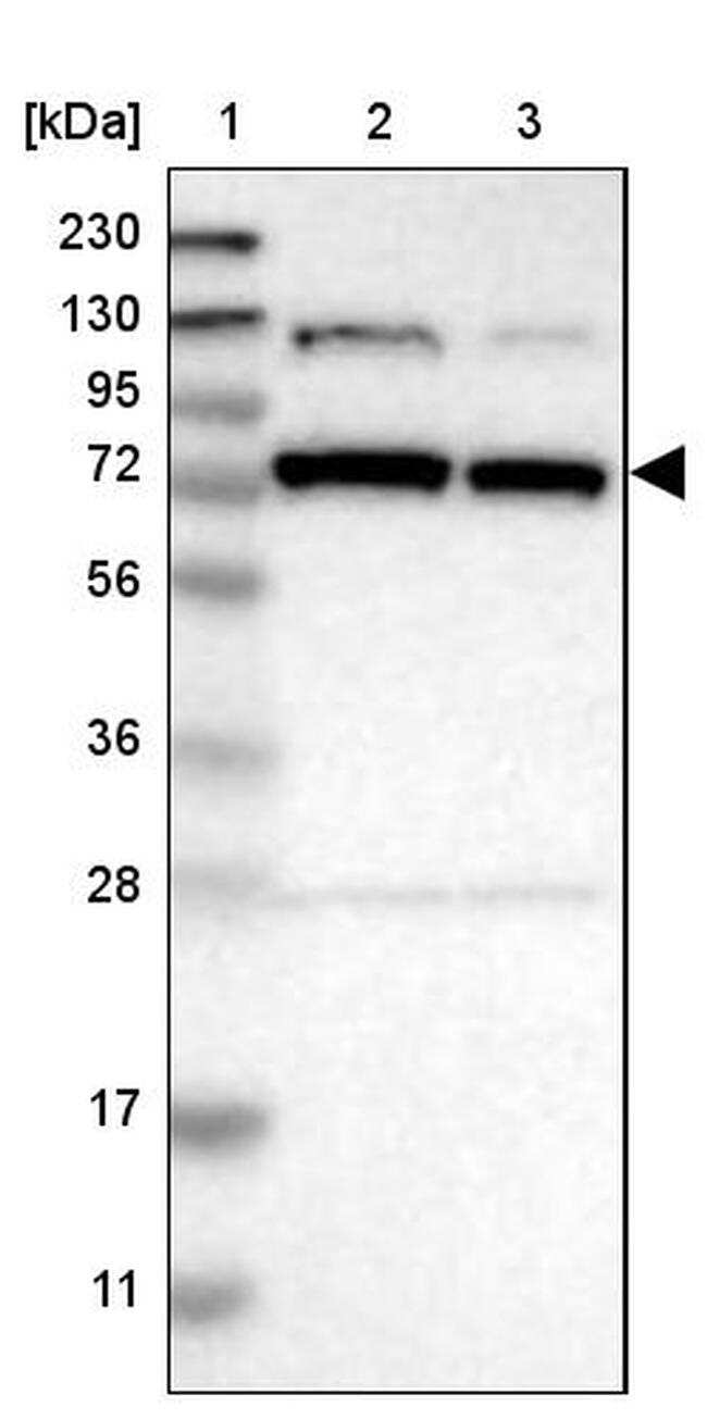 GARS Antibody in Western Blot (WB)