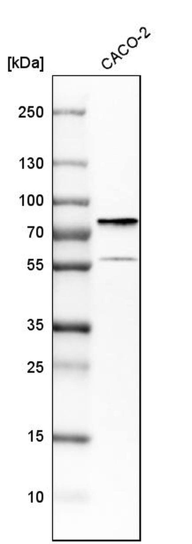 DDX41 Antibody in Western Blot (WB)