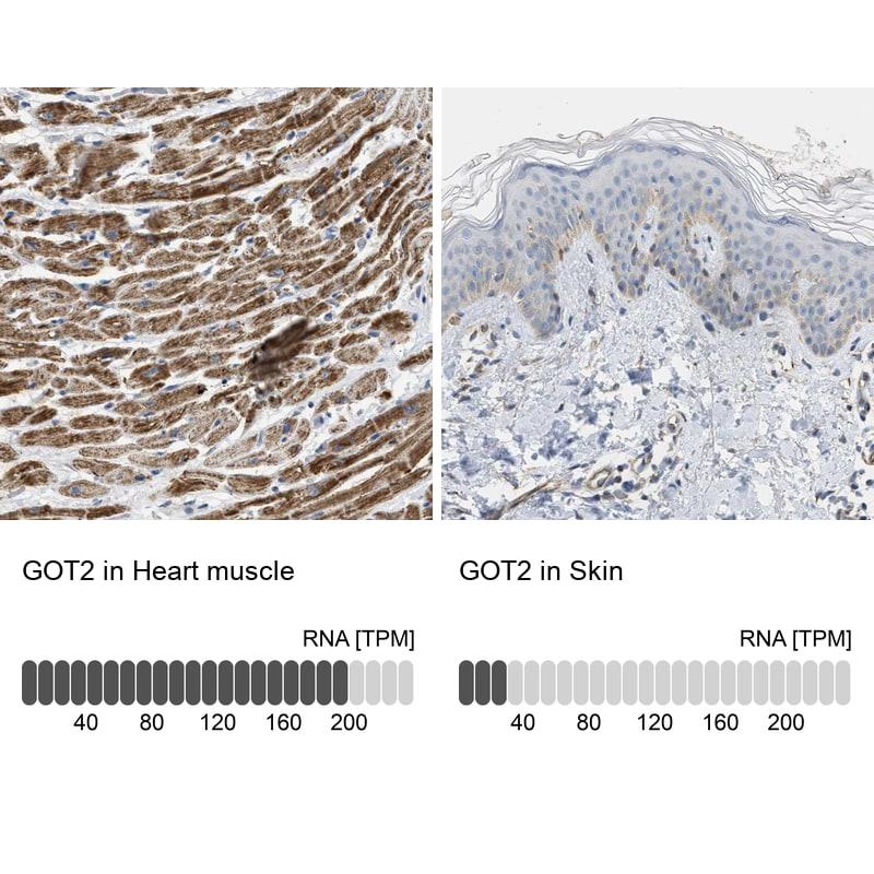 GOT2 Antibody in Relative expression