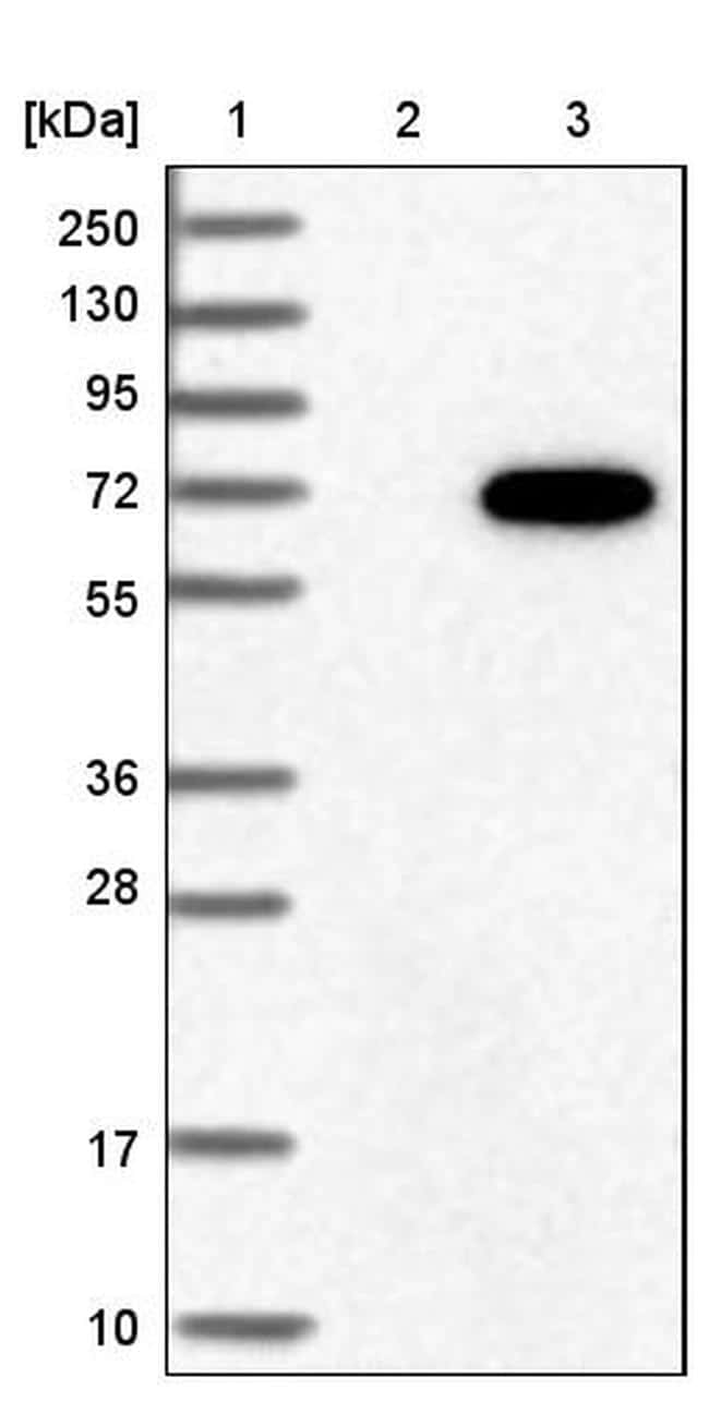 GRK6 Antibody in Western Blot (WB)
