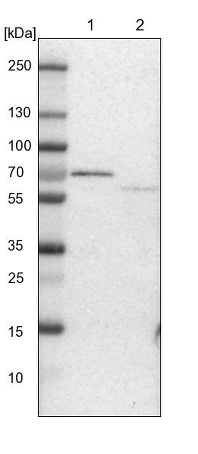 ACADVL Antibody in Western Blot (WB)