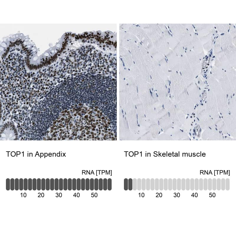 TOP1 Antibody in Relative expression