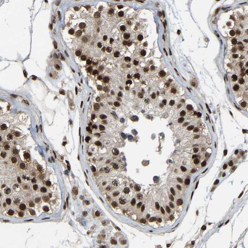 TBLR1 Antibody in Immunohistochemistry (IHC)