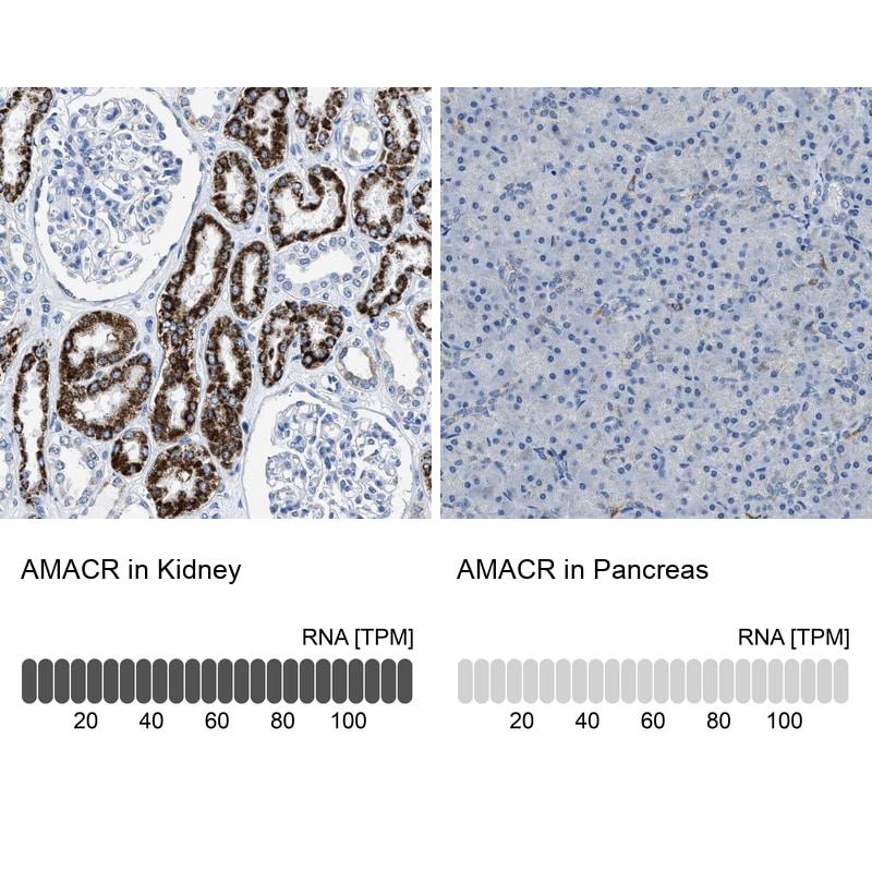 AMACR Antibody in Immunohistochemistry (IHC)