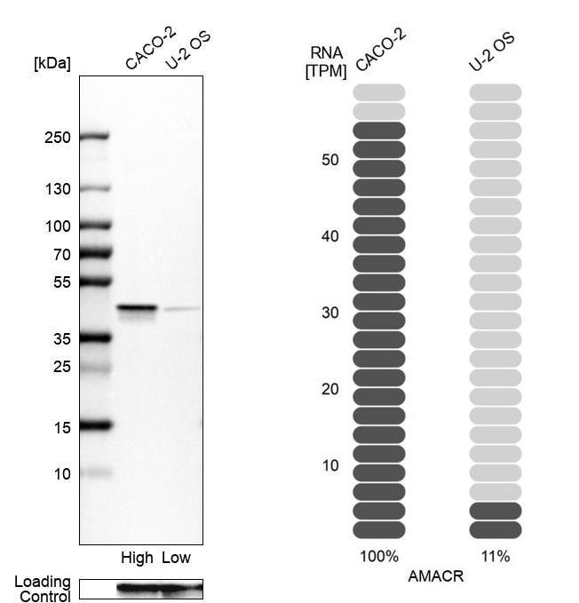 AMACR Antibody in Western Blot (WB)