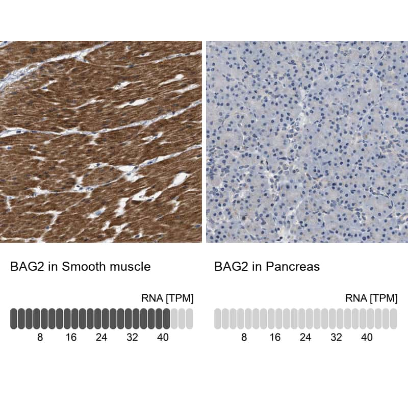 BAG2 Antibody in Immunohistochemistry (IHC)