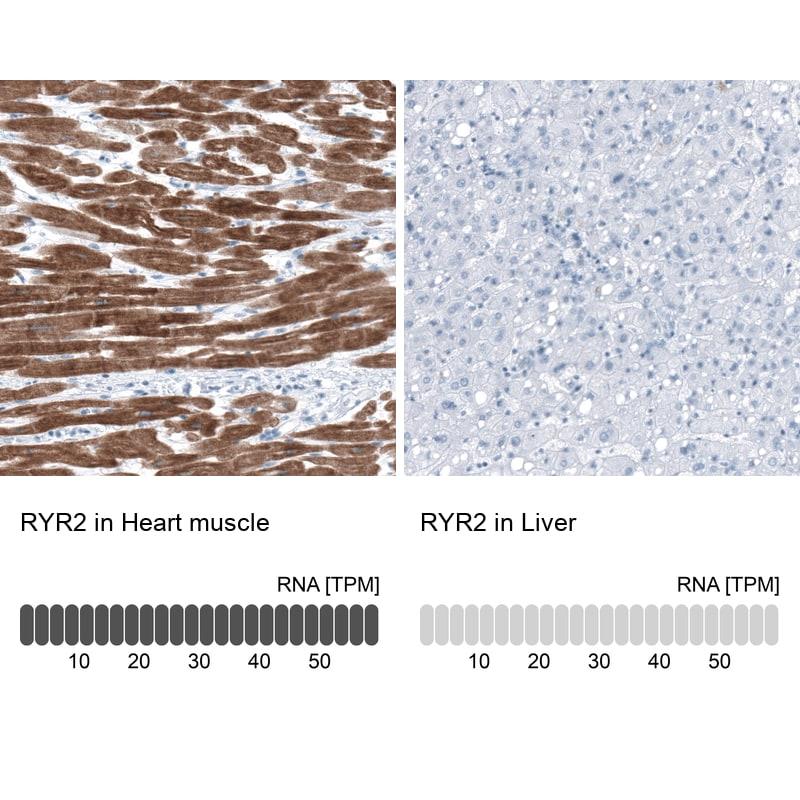 RyR2 Antibody in Relative expression