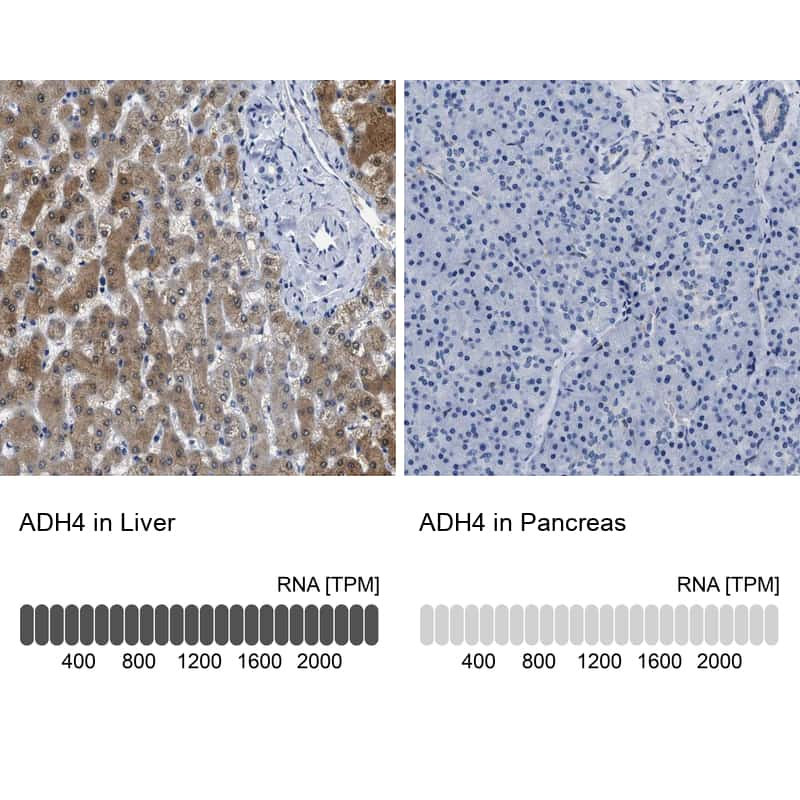 ADH4 Antibody in Relative expression