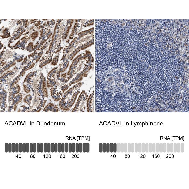 ACADVL Antibody in Relative expression