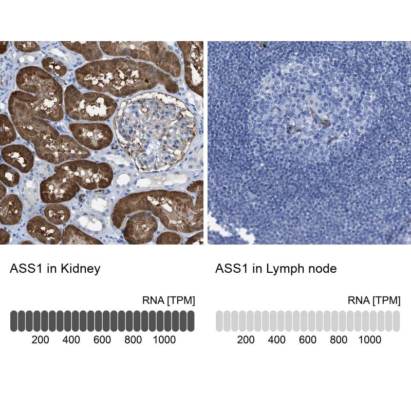 ASS1 Antibody in Immunohistochemistry (IHC)