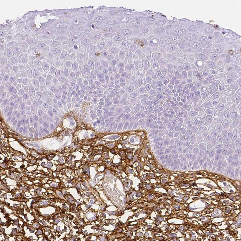 Fibrillin 1 Antibody in Immunohistochemistry (IHC)