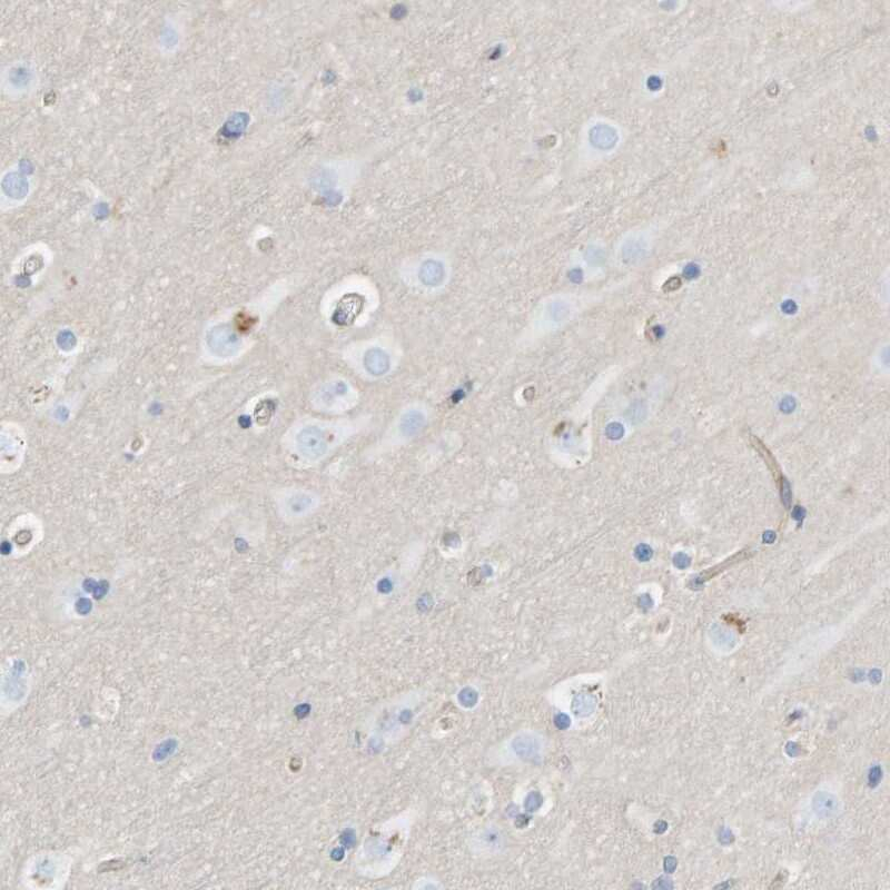 Protein Kinase D2 Antibody in Immunohistochemistry (IHC)