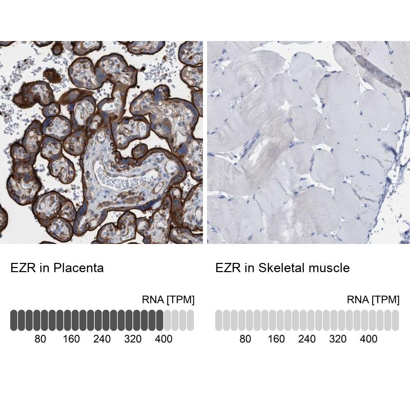 Ezrin Antibody in Relative expression