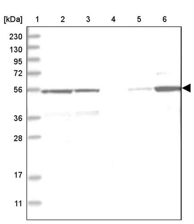 Carboxypeptidase A1 Antibody in Western Blot (WB)