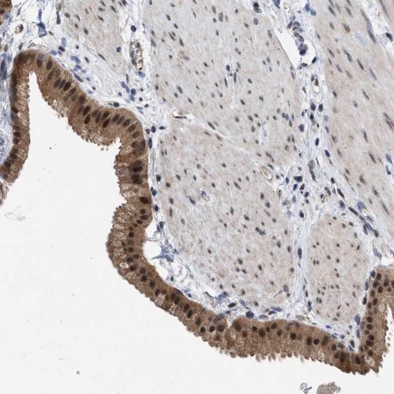 MKNK2 Antibody in Immunohistochemistry (IHC)