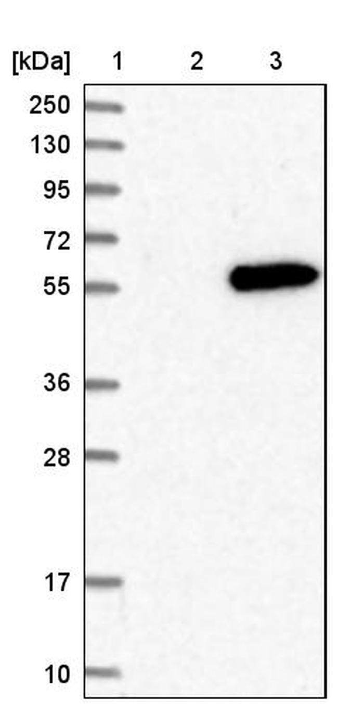 MKNK2 Antibody in Western Blot (WB)