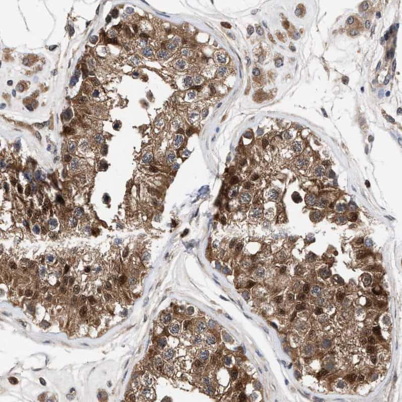PIG3 Antibody in Immunohistochemistry (IHC)