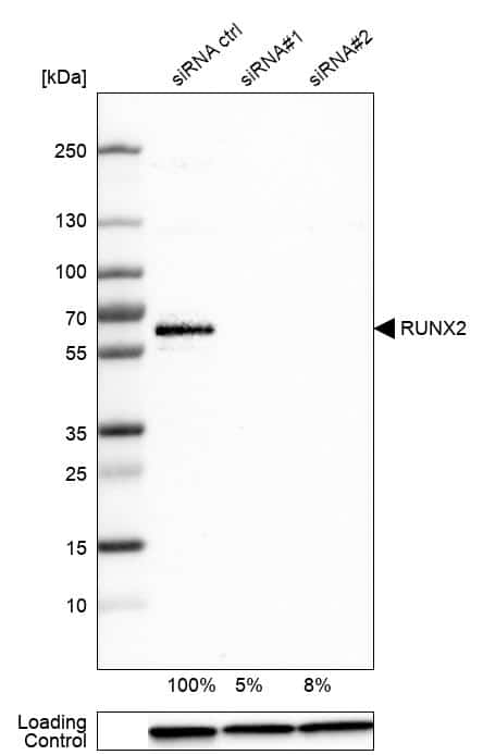 RUNX2 Antibody in Knockdown