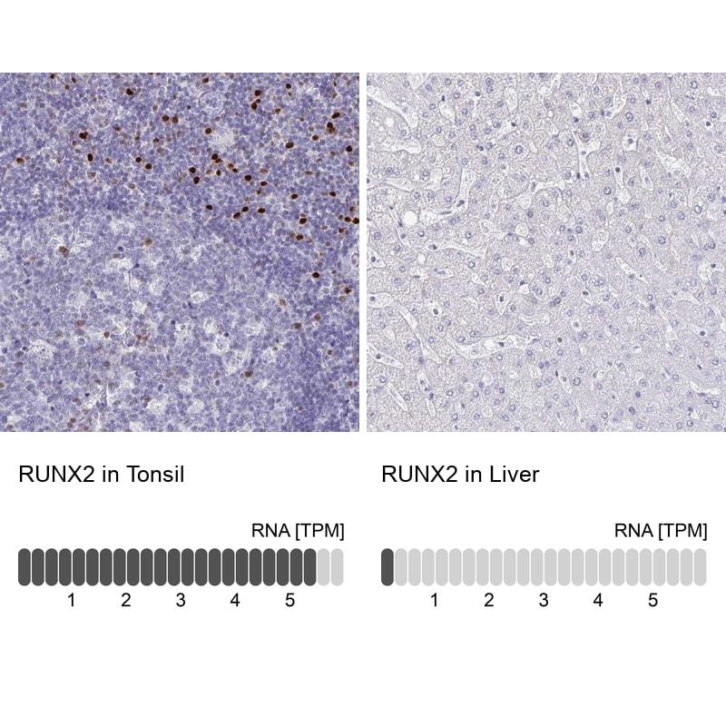 RUNX2 Antibody in Immunohistochemistry (IHC)