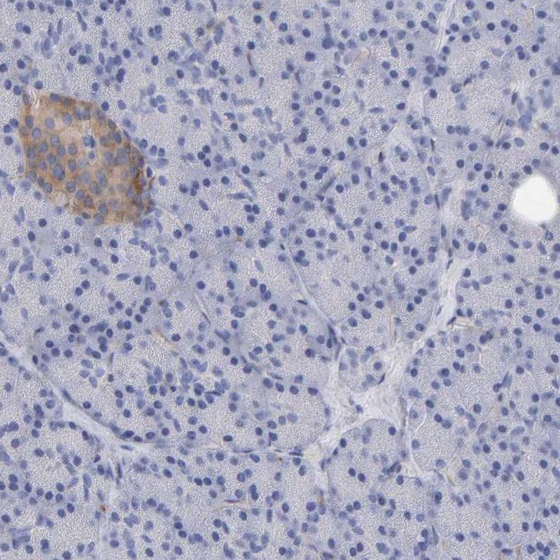 MAP1B Antibody in Immunohistochemistry (IHC)