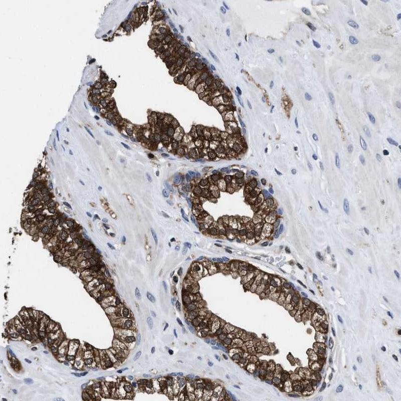 ATP Citrate Lyase Antibody in Immunohistochemistry (IHC)