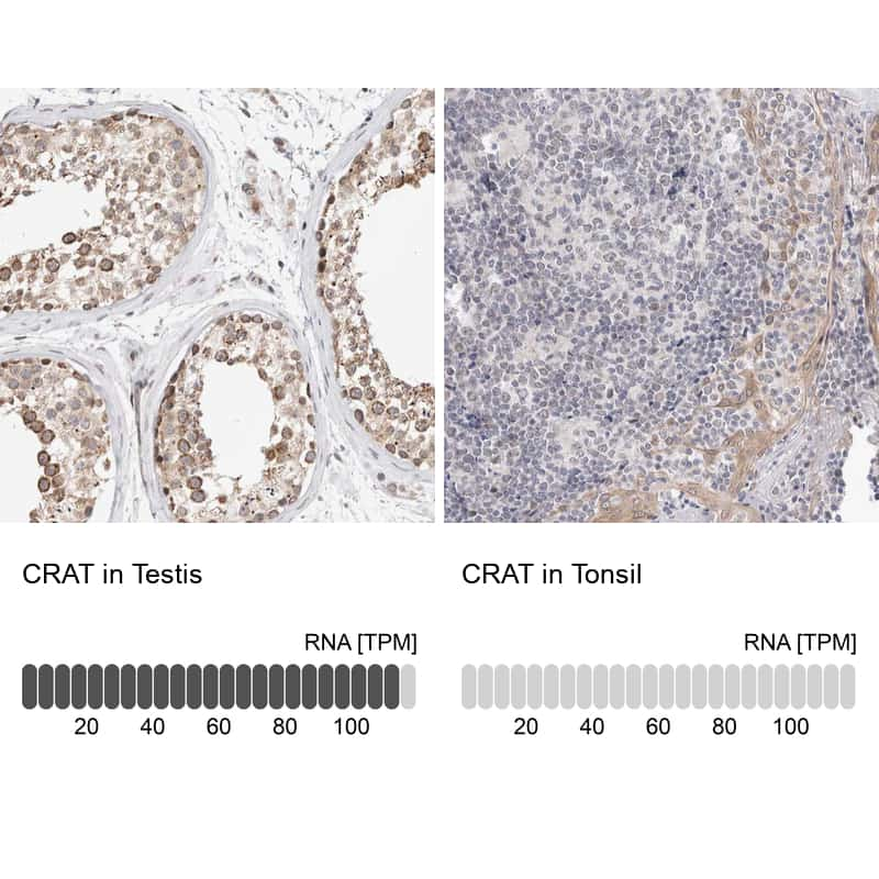 CAT1 Antibody in Relative expression