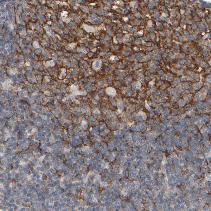 EPHX2 Antibody in Immunohistochemistry (IHC)
