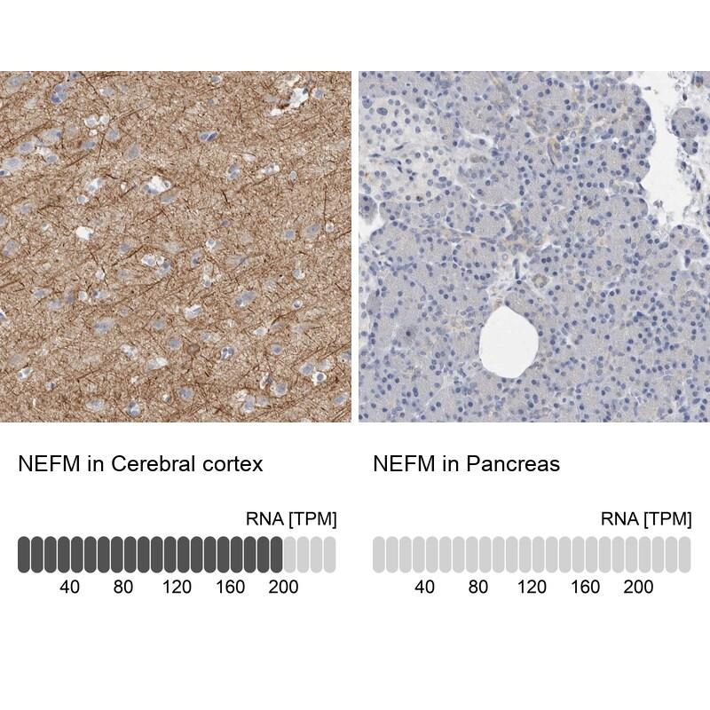 NEFM Antibody in Immunohistochemistry (IHC)