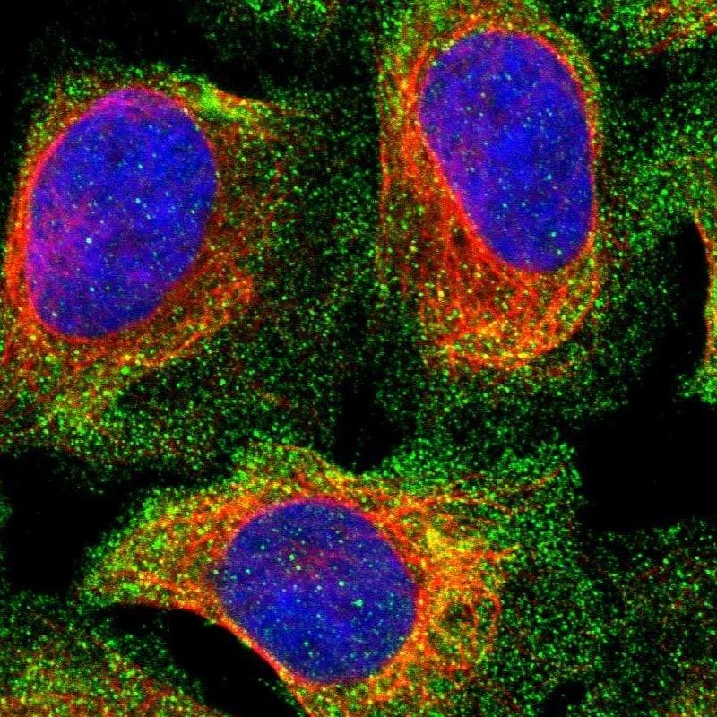 PPP3CC Antibody in Immunocytochemistry (ICC/IF)