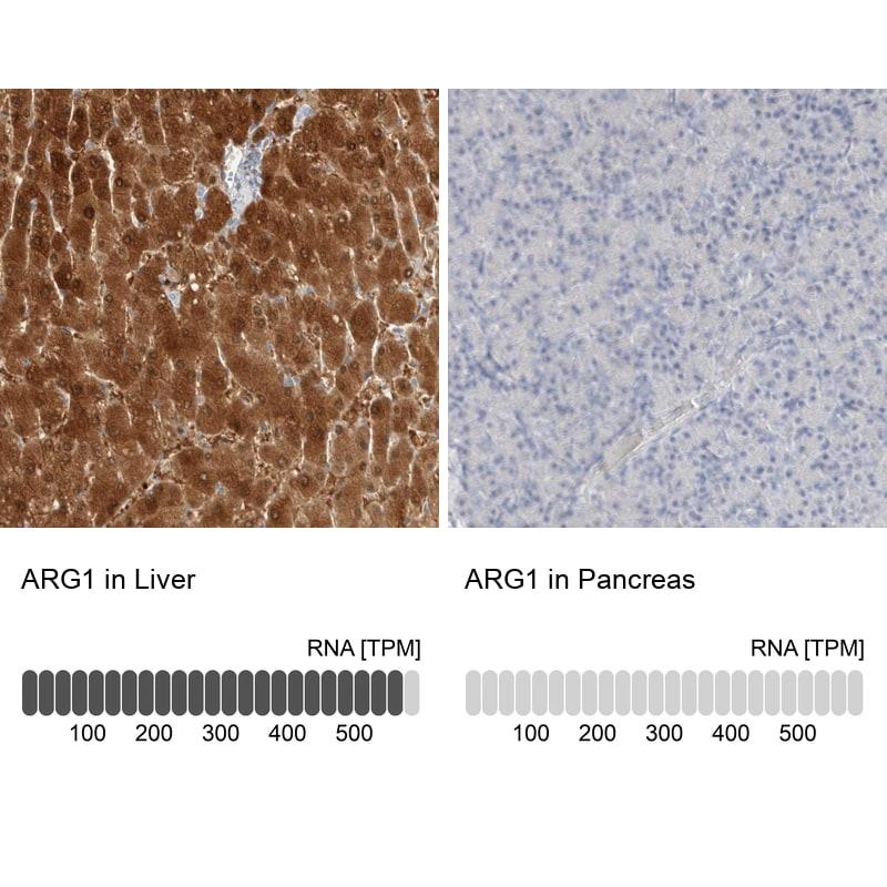 Arginase 1 Antibody in Relative expression