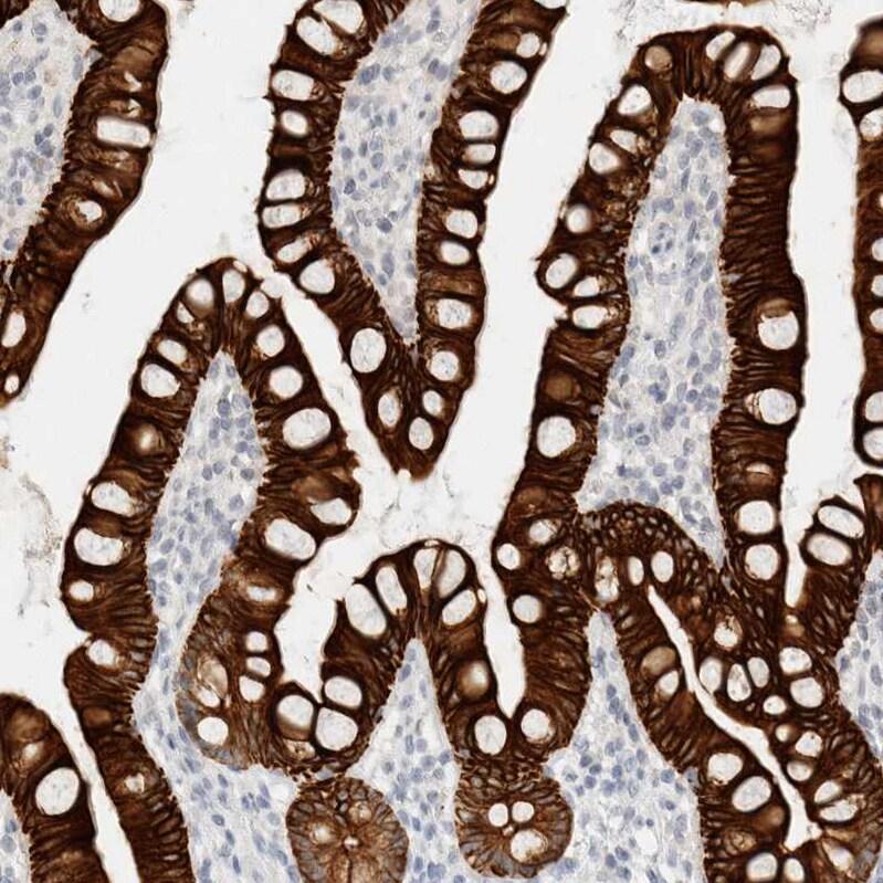 Cytokeratin 20 Antibody in Immunohistochemistry (IHC)