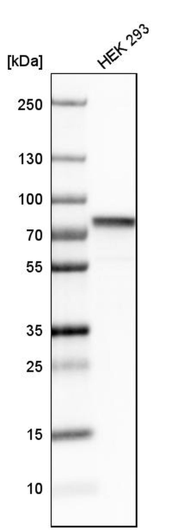 hnRNP M1-M4 Antibody in Western Blot (WB)
