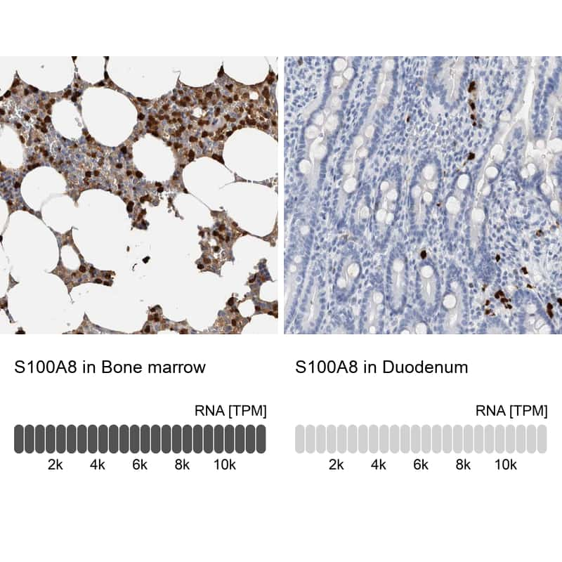 S100A8 Antibody in Relative expression