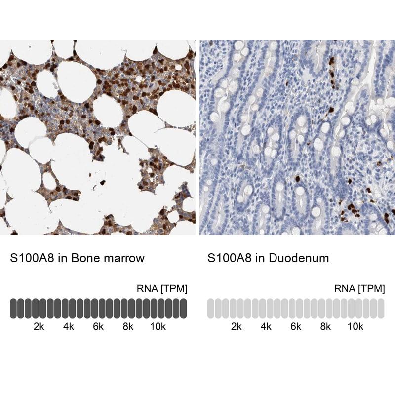 S100A8 Antibody in Immunohistochemistry (IHC)