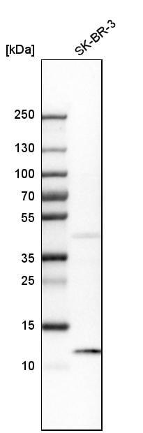 S100A8 Antibody in Western Blot (WB)