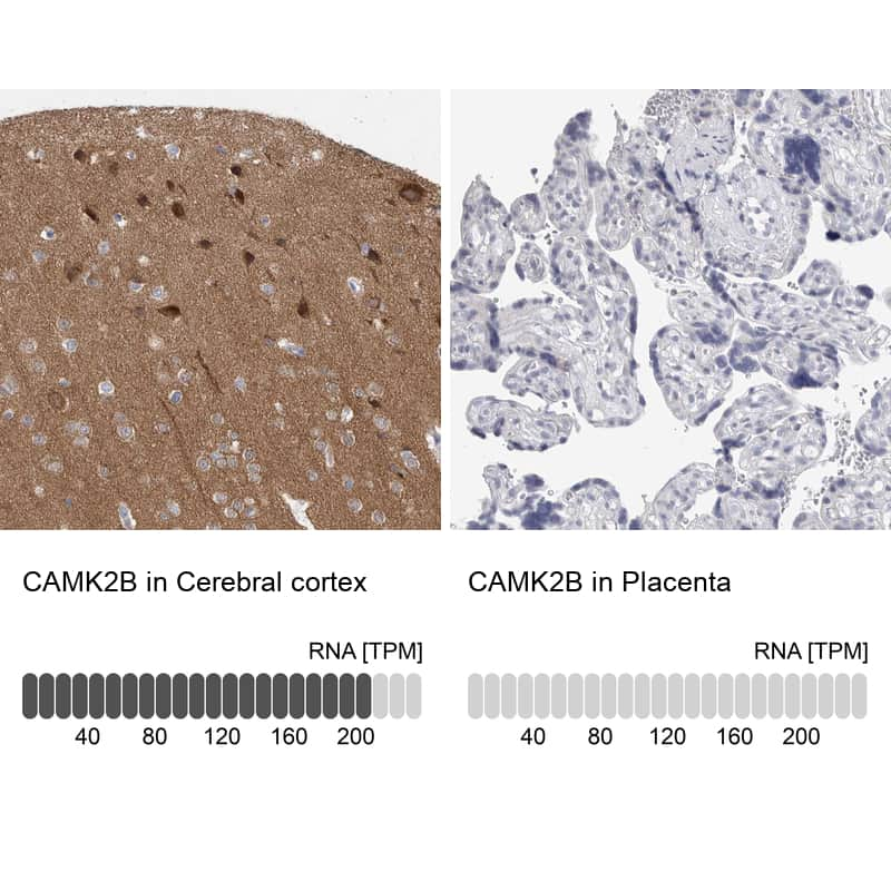 CaMKII beta Antibody in Relative expression