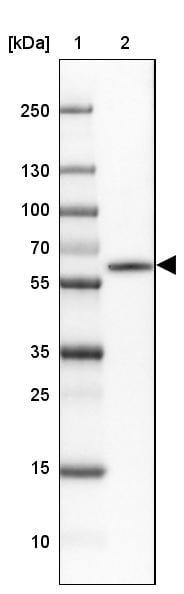 CaMKII beta Antibody in Western Blot (WB)