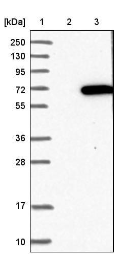 MPP2 Antibody in Western Blot (WB)