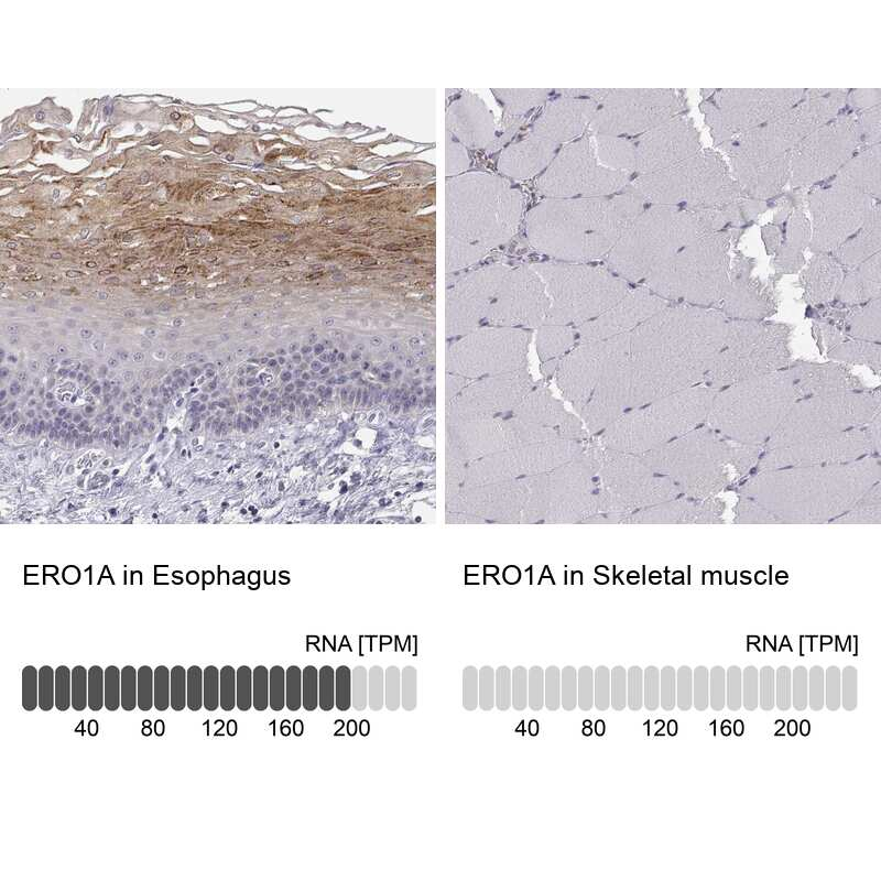 ERO1L Antibody in Relative expression