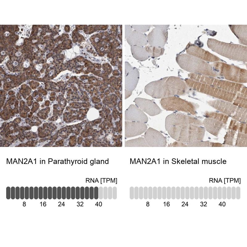 MAN2A1 Antibody in Immunohistochemistry (IHC)