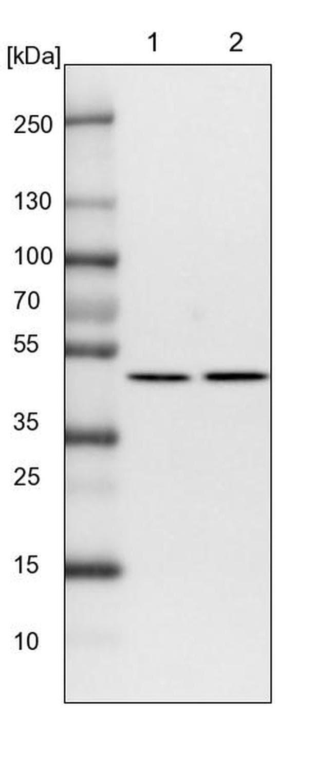 Fumarase Antibody in Western Blot (WB)