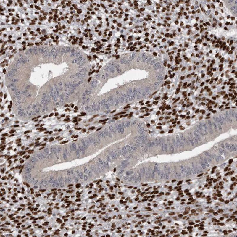 ZEB1 Antibody in Immunohistochemistry (IHC)