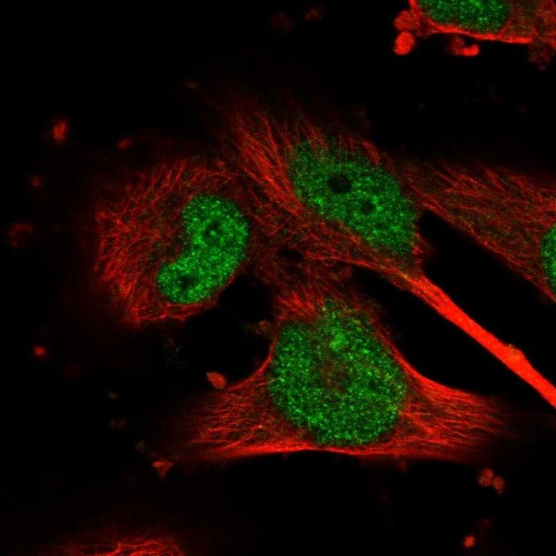 GSK3B Antibody in Immunofluorescence (IF)