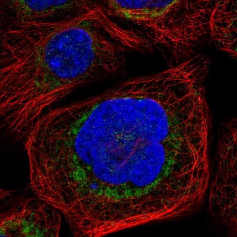BAD Antibody in Immunofluorescence (IF)