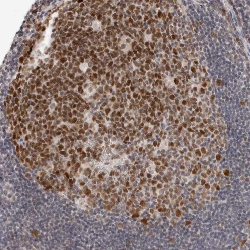MSH6 Antibody in Immunohistochemistry (IHC)