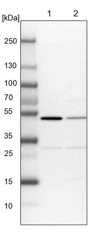 CSK Antibody in Western Blot (WB)