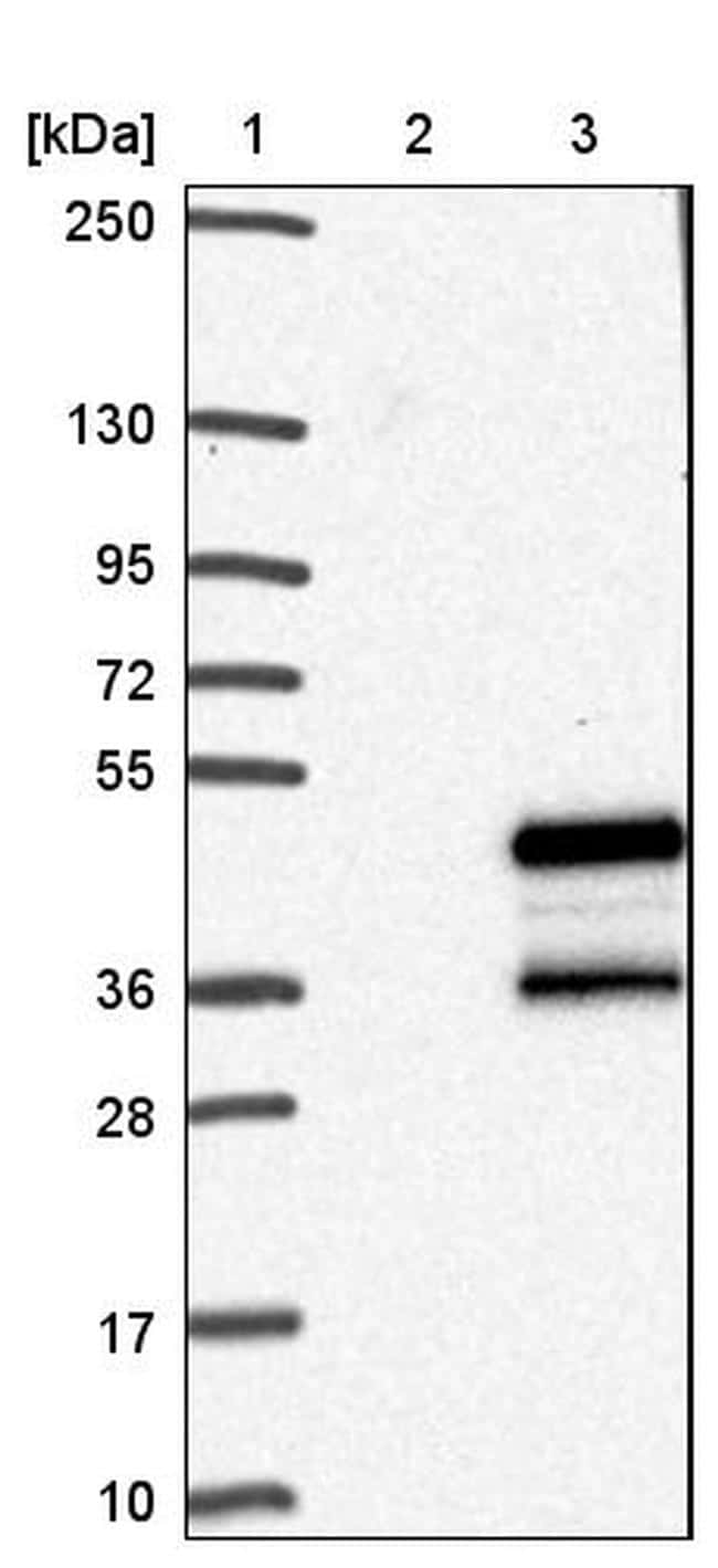 Carbonic Anhydrase VI Antibody in Western Blot (WB)