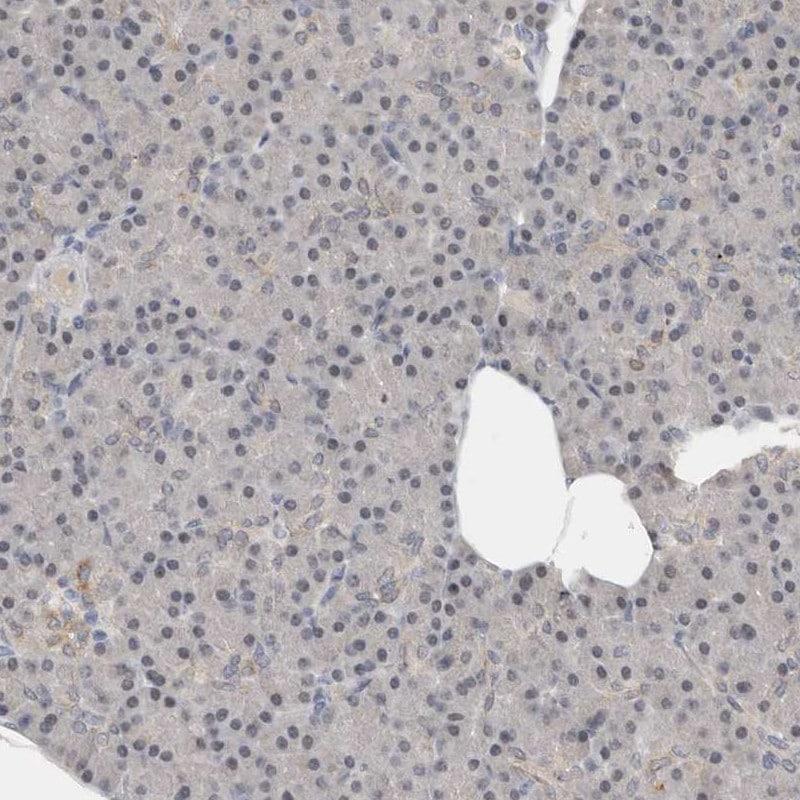 Transferrin Receptor Antibody in Immunohistochemistry (IHC)